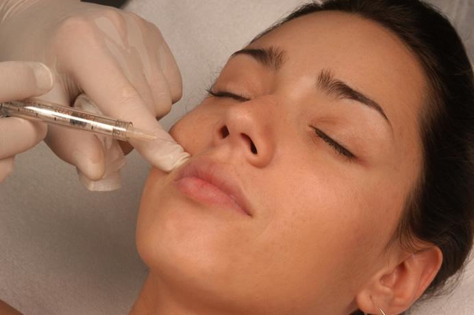 preenchimento-facial-com-acido-hialuronico-1