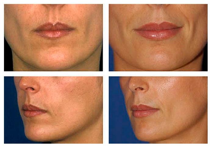 preenchimento-facial-com-acido-hialuronico-2